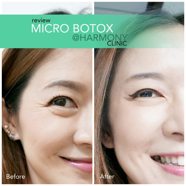 botox,before and after